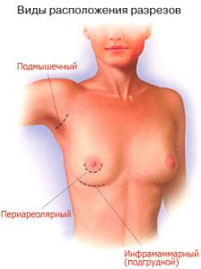 Разрезы при увеличении груди