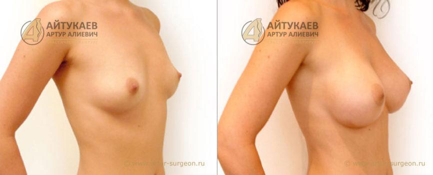 Увеличение груди. Увеличение груди. Пациентка Е. 25 года, анатомические имплантаты.