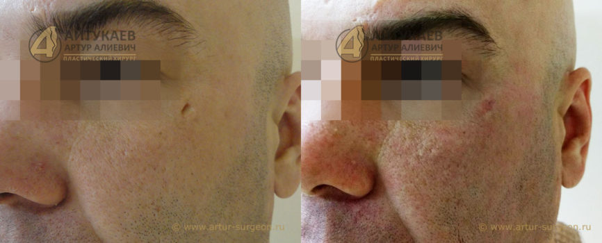Удаление рубцов до и после Пациент К фото 1