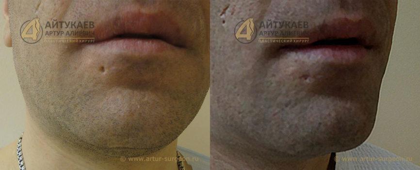 Удаление рубцов до и после Пациент К фото 2