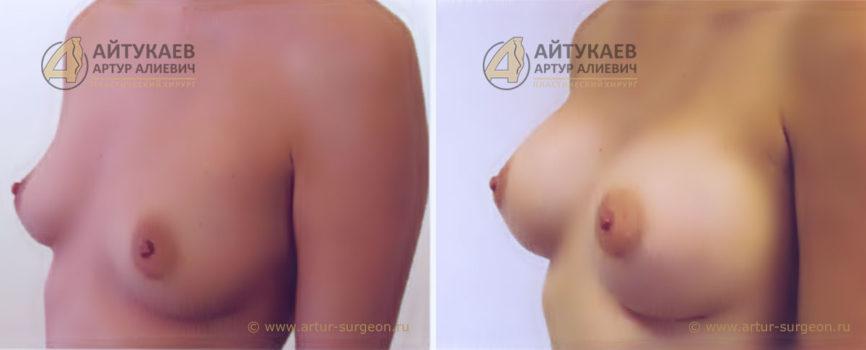 Увеличение груди. Пациентка М, 32 года, круглые имплантаты.